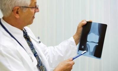 Contattare il Dottore per il dolore alle Ginocchia