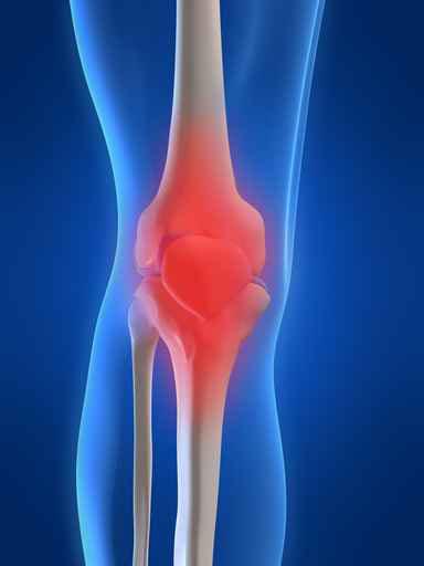 Osteochondrosis cervicale recidivous corrente