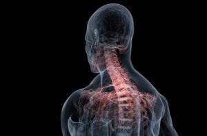 Artrite Cervicale