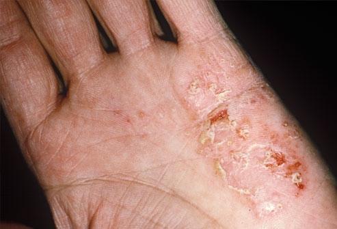 Cura della droga di psoriasi di unghie