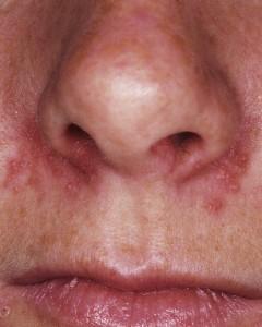 Herpes Nasale