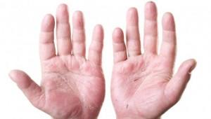 Sintomi Dermatite