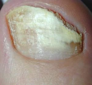 Farmaci contro un fungo di unghie di medicina