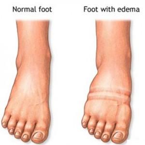Edema II