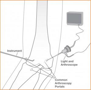 Artroscopia II