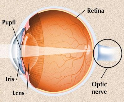 Neurite Ottica II
