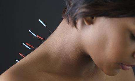 Agopuntura II