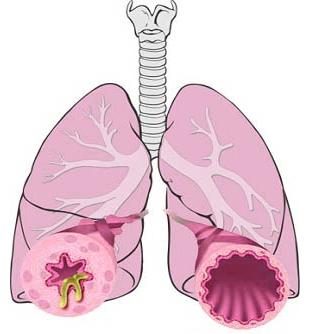 Bronchite II