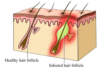 Follicolite