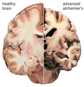 Alzheimer II
