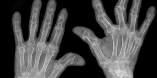 Artrite Reumatoide II