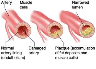 Arteriosclerosi II