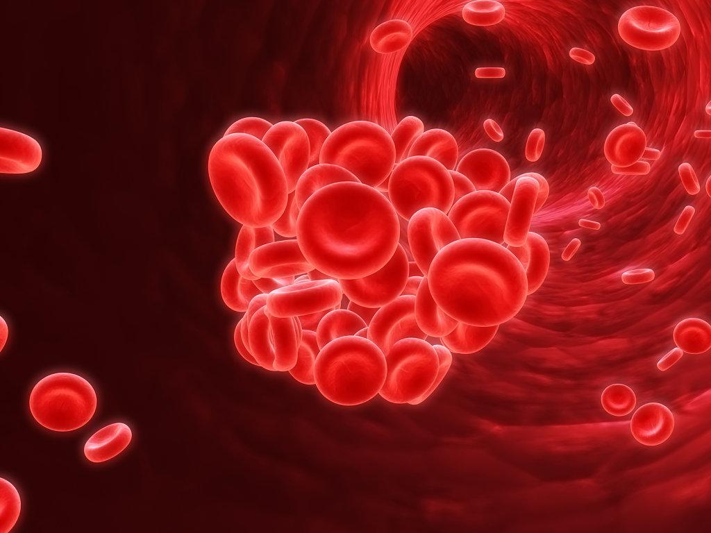 Anemia II