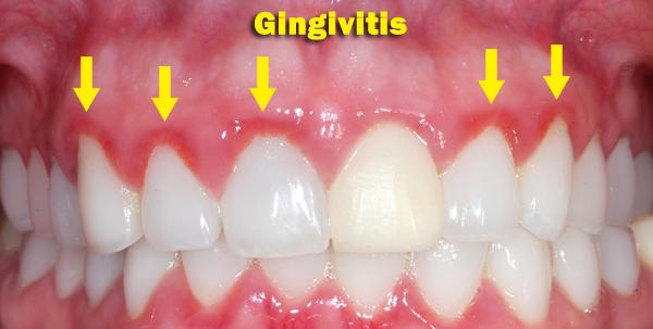 Gengivite II