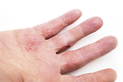 La dermatite di atopic ad adulti quanti è trattato