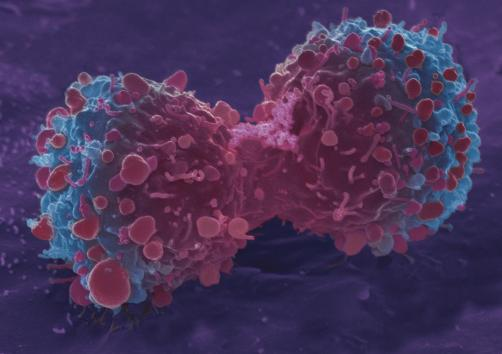 Cancro II