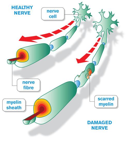 Sclerosi Multipla II