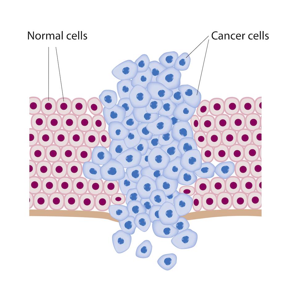Cellule sane e cellule tumorali