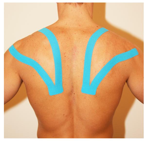 Applicazione del Taping Elastico nell'area dorsale