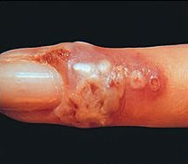 Herpetic Whitlow: Background, Pathophysiology, Epidemiology