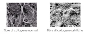 fibre collagene