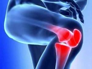 ginocchio cartilagine