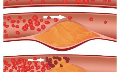 Colesterolo alto: Rimedi.