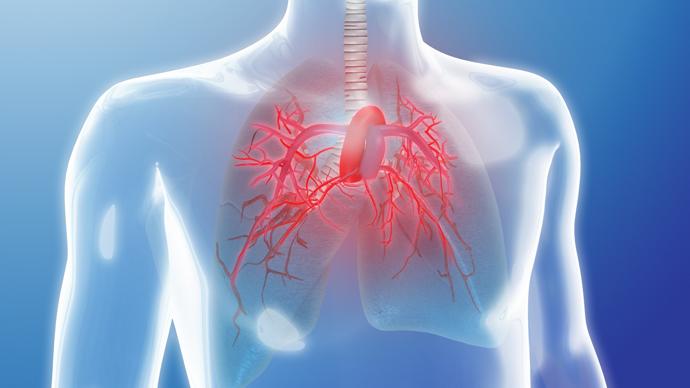 Ipertensione polmonare: definizione - Infiammazione.com