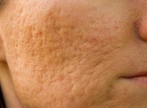 acne-cicatrici1