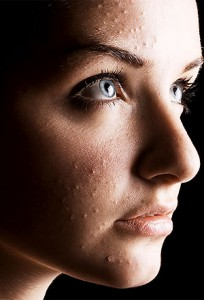 Acne cosmetica, primo piano della patologia