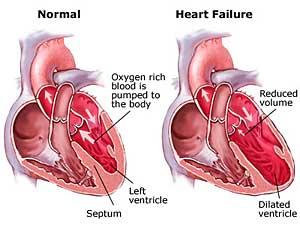 Insufficienza cardiaca