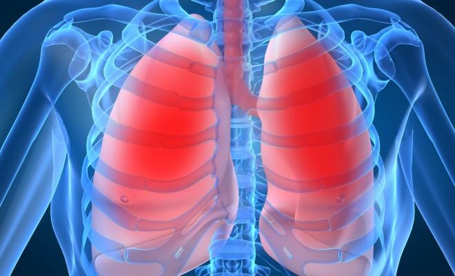 Insufficienza polmonare