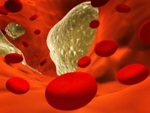 Aterosclerosi nel sangue