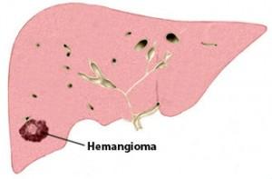 Angioma Epatico