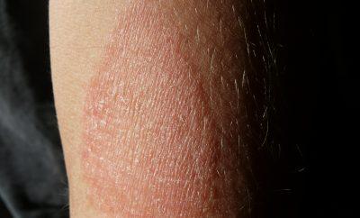 Capire il Lupus
