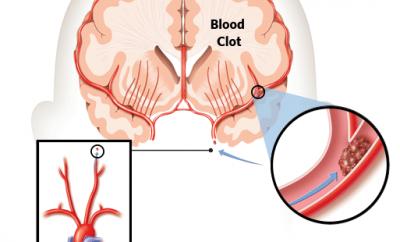 Ischemia Cerebrale