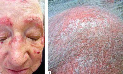 Lupus Eritematoso Follicolare