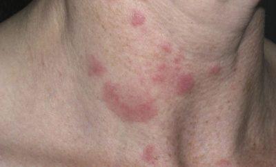 Lupus Eritematoso Profondo